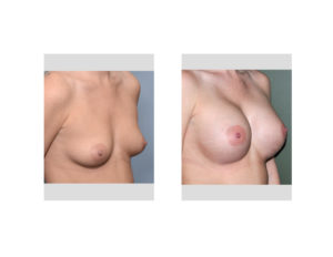 Anatomic Breast Implants results oblique view Dr Barry Eppley Indianapolis