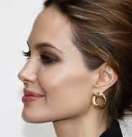 Angelina Jolie Square Jaw Angle Dr Barry Eppley Indianapolis
