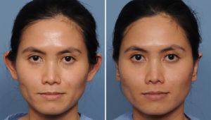 Asian Otoplasty results front view Dr Barry Eppley Indianapolis