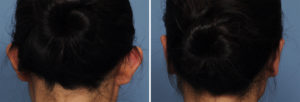 Asianj Otoplasty results back view Dr Barry Eppley Indianapolis