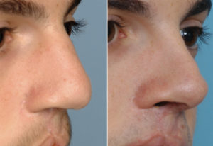 Bilateral Cleft Septorhinoplasty result oblique view Dr Barry Eppley Indianapolis