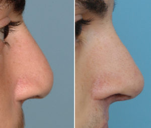 Bllateral Cleft Septorhinoplasty result side view Dr Barry Eppley Indianapolis