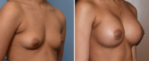 Breast Asymetry Augmentation result oblique view Dr Barry Eppley Indianapolis
