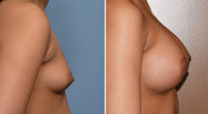 Breast Asymmetry Augmentation result side view Dr Barry Eppley Indianapolis