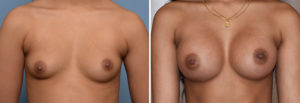 Breast Asymmetry Augmentationresult front view Dr Barry Eppley Indianapolis