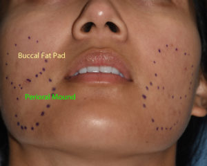 Buccal Fat Pad vs Perioral Mound Dr Barry Eppley Indianapolis