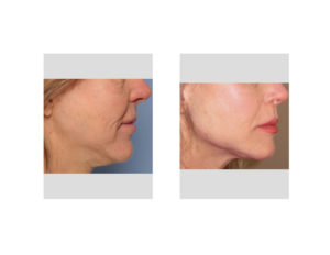 Female Jaw Angle Implants result right side view Dr Barry Eppley Indianapolis