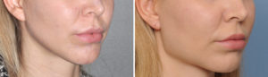 Female Square Jaw Angle Implants result oblique view Dr Barry Eppley Indianapolis