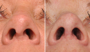 Hanging Columella Rhinoplasty result submental view Dr Barry Eppley Indianapolis