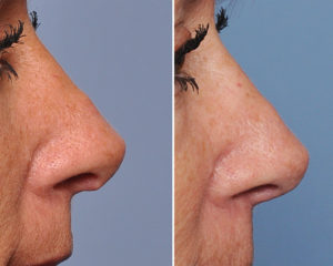 Hanging Columellar Rhinoplasty correction side view Dr Barry Eppley Indianapolis