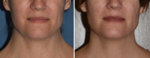 JV Webbed Neck Correction result front view Dr Barry Eppley Indianapolis