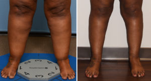 Large Cankle Liposuction result front view Dr Barry Eppley Indianapolis