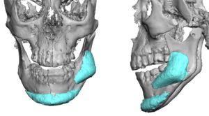 Malpositioned Jaw Angle Implant