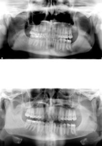 Mandibular Inferior Border Shave Dr Barry Eppley Indianapolis