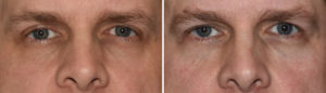 Orbital Floor Augmentation result front view Dr Barry Eppley Indianapolis