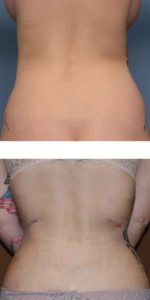 Rib Removal for Waistline Narrowing Dr Barry Eppley Indianapolis