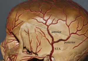 Superficial Temporal Artery Anatomy Dr Barry Eppley Indianapolis
