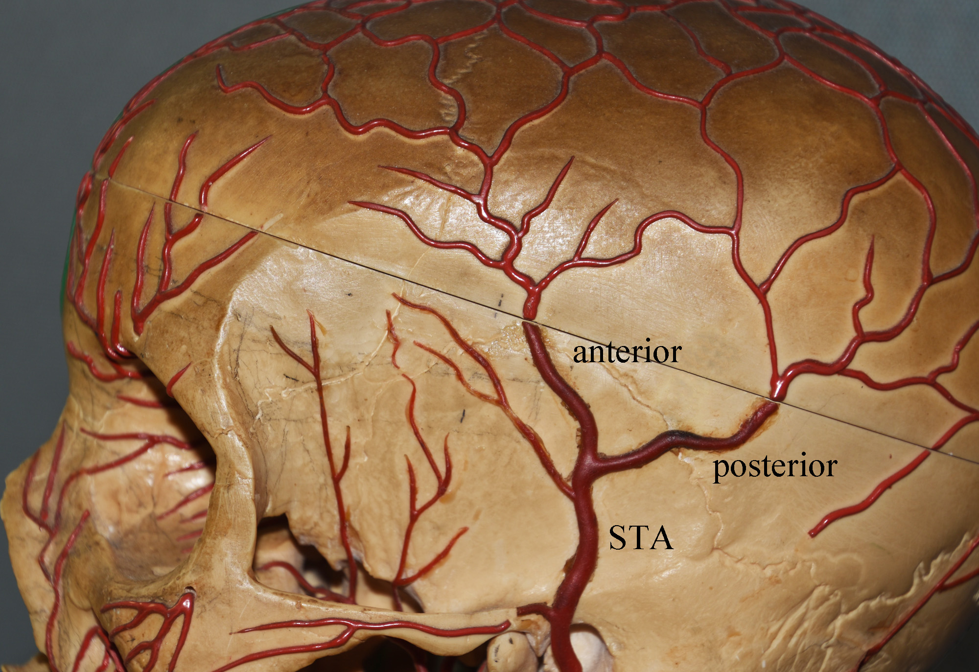 Blog ArchiveThe Anatomy of Aesthetic Temporal Artery Ligation -