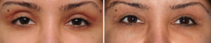 Wider Eye Blepharoplasties result Dr Barry Eppley Indianapolis