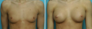 Young Breast Augmentation results front view Dr Barry Eppley Indianapolis