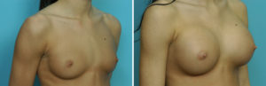 Young Breast Augmentation results oblique view Dr Barry Eppley Indianapolis