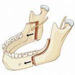 sagittal split mandibuar osteotomy