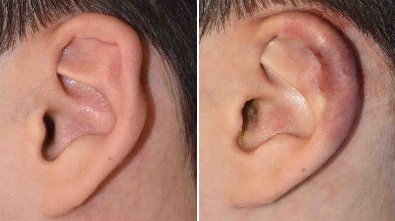 explore plastic surgery dr barry eppley plastic surgeon his immediate intraoperative result showed improvement in the shape of ear through recreation of a more defined outer helical rim while many techniques for