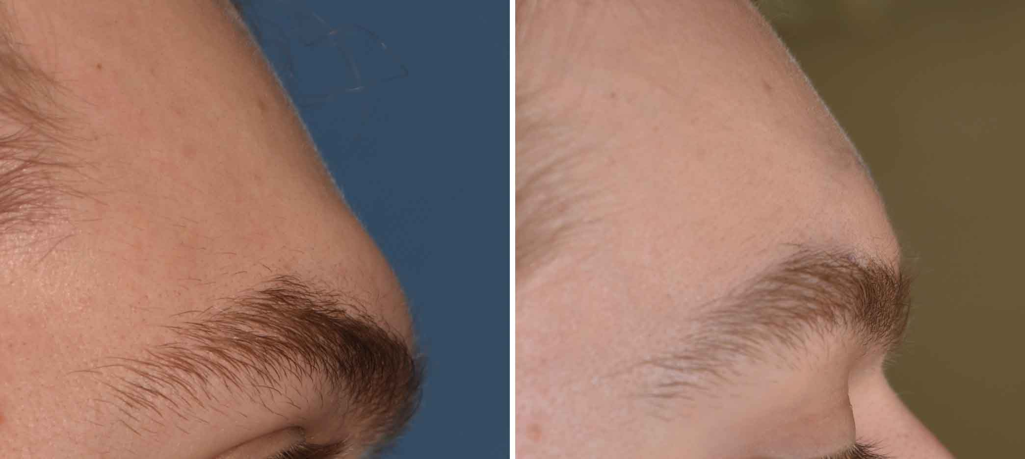 explore plastic surgery dr barry eppley plastic surgeon the immediate change in the forehead profile was evident but not over flattened