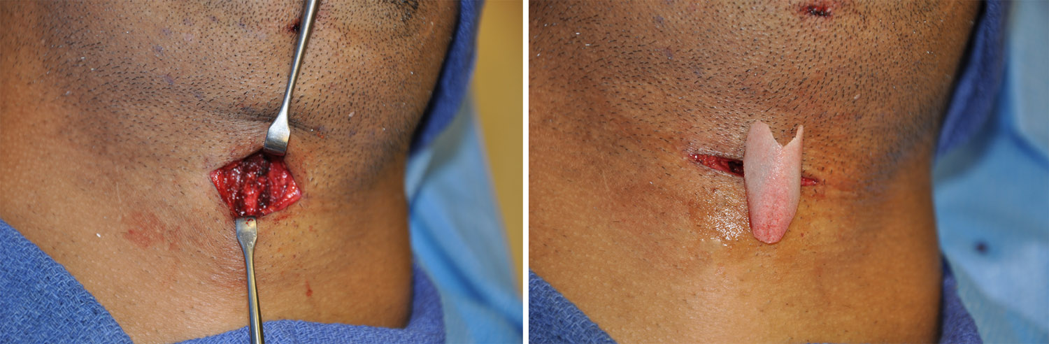 Adams Apple Reduction Archives