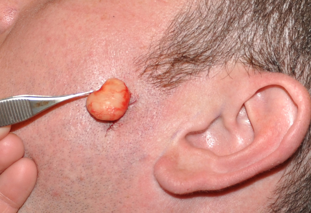 Removal of facial epidermal cysts