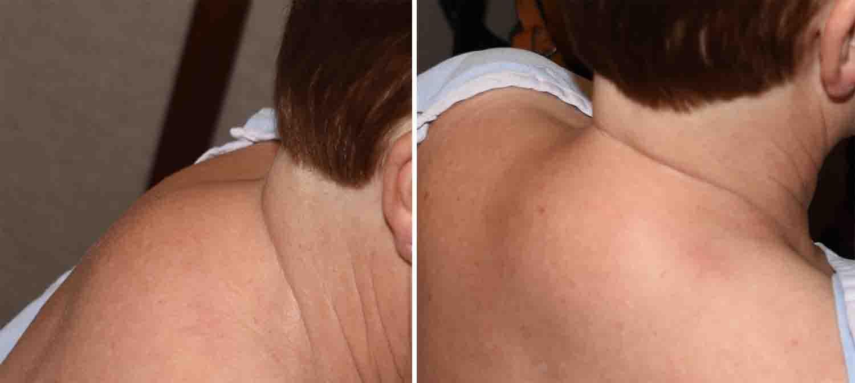 topiramate weight loss mechanism