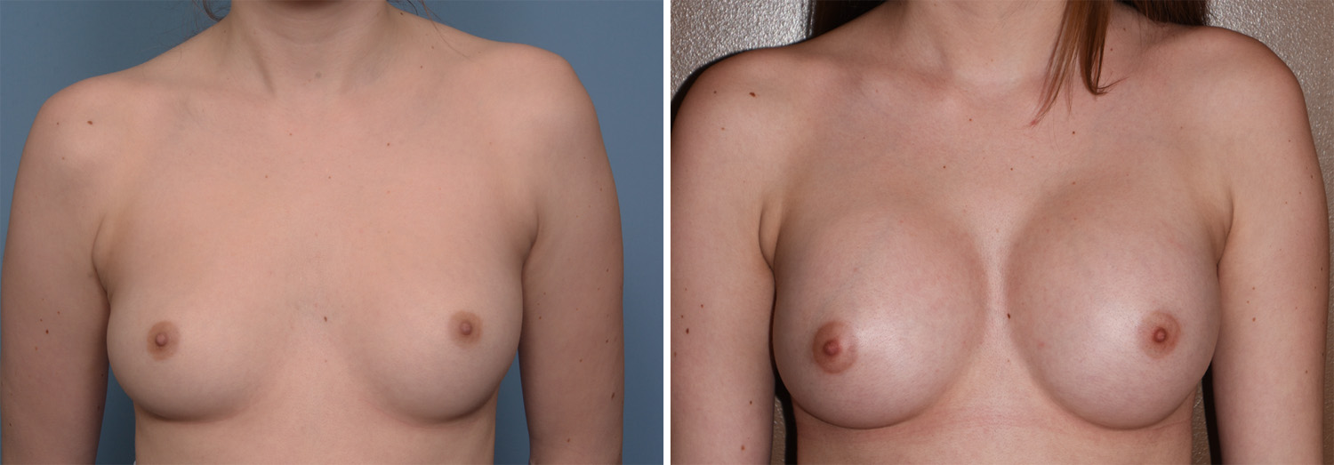 Saline breast implants indiana