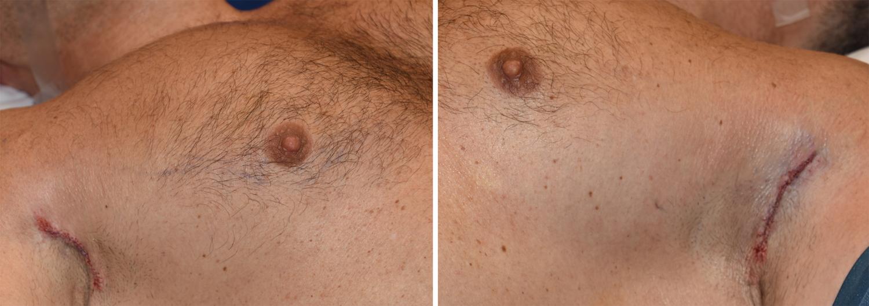 Sub pectoral breast implant