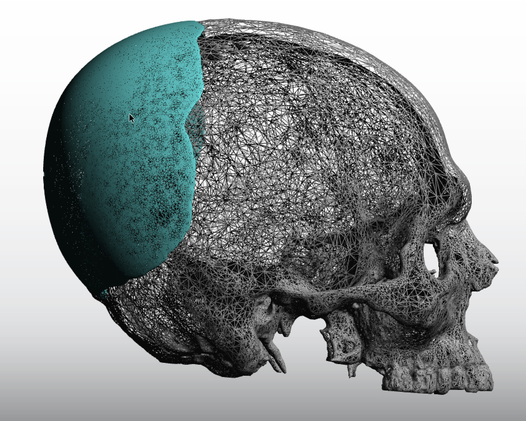This information shows the various causes of Flat back of skull, and how common these diseases or conditions are in the general population. This is not a direct indication as to how commonly these diseases are the actual cause of Flat back of skull, but gives a relative idea as to how frequent these.