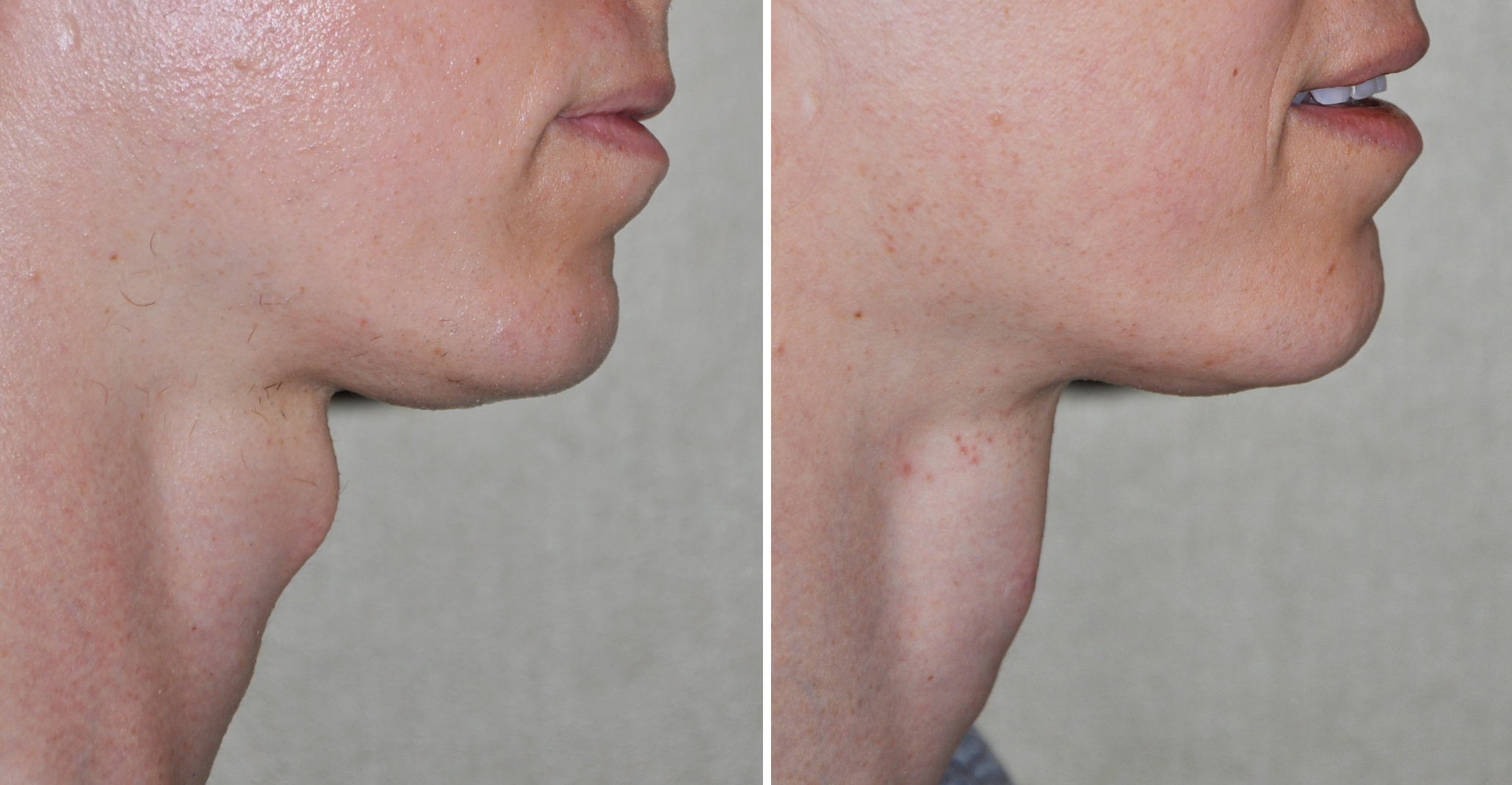 Plastic Surgery Case Study - Tracheal Shave In Facial -3903