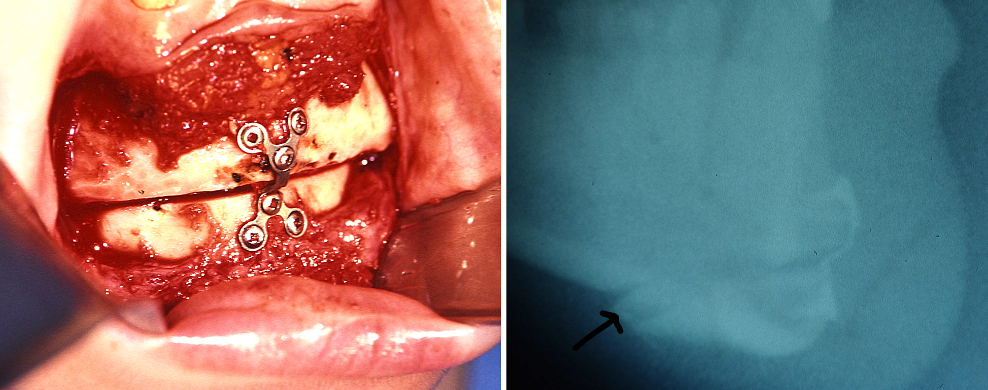 chin osteotomy Archives -