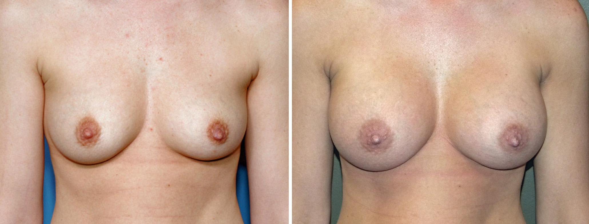 breast augmentation breast implants and breast e