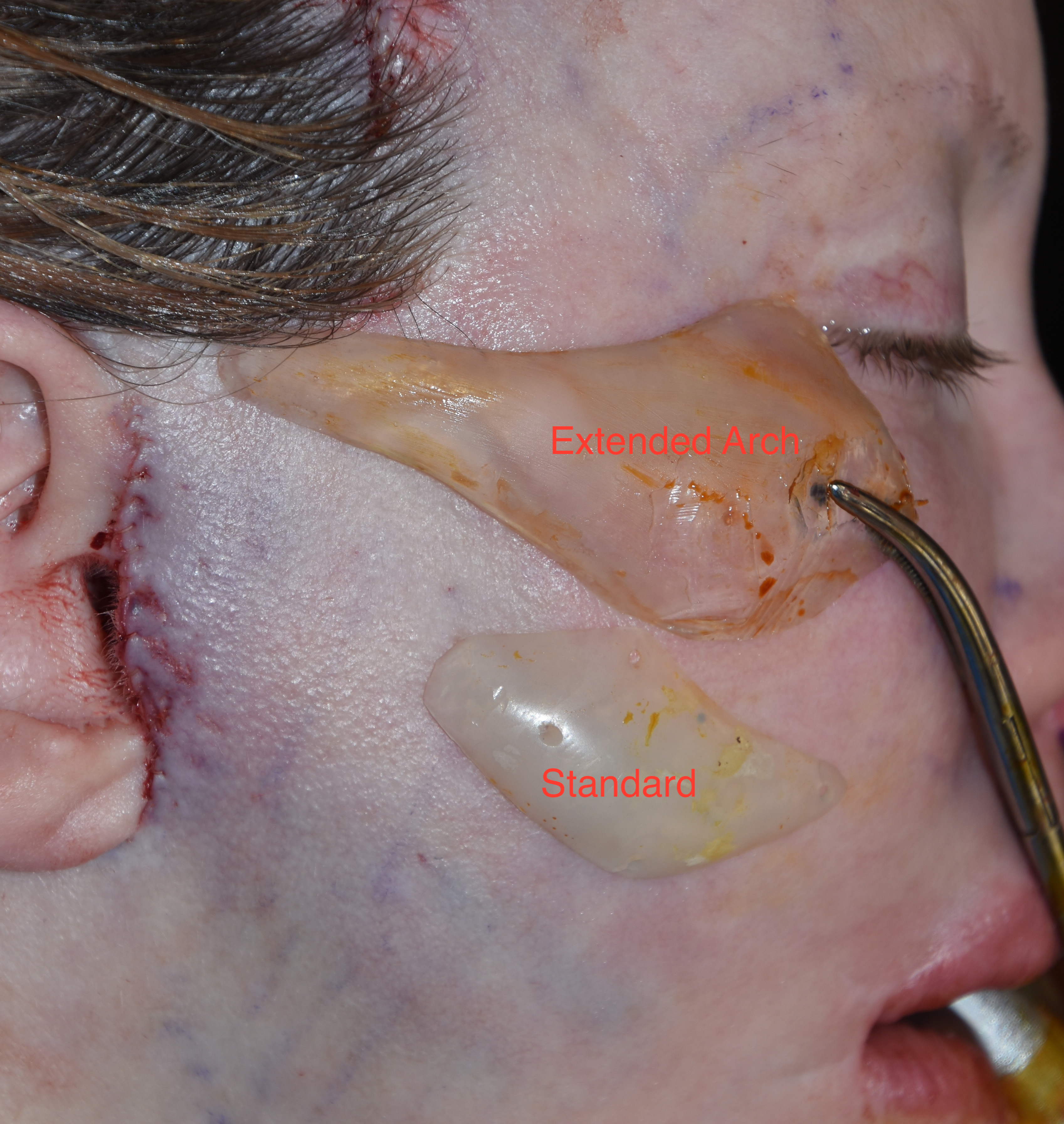 Cheek Implants Photo Gallery - Before and Afters