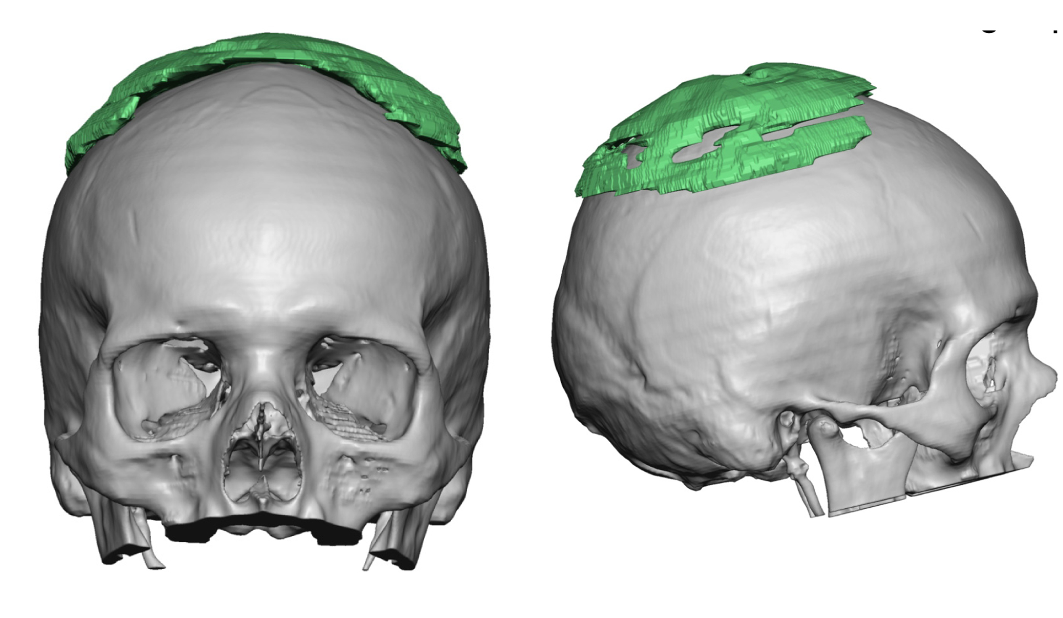 Plastic Surgery Case Study - Correction of the Inverted V