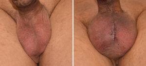 [5-Testicular-Implants-result-Dr-Barry-Eppley-Indianapolis-300x135]