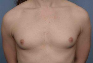 Breast augmentation transgender images.dujour.com: over